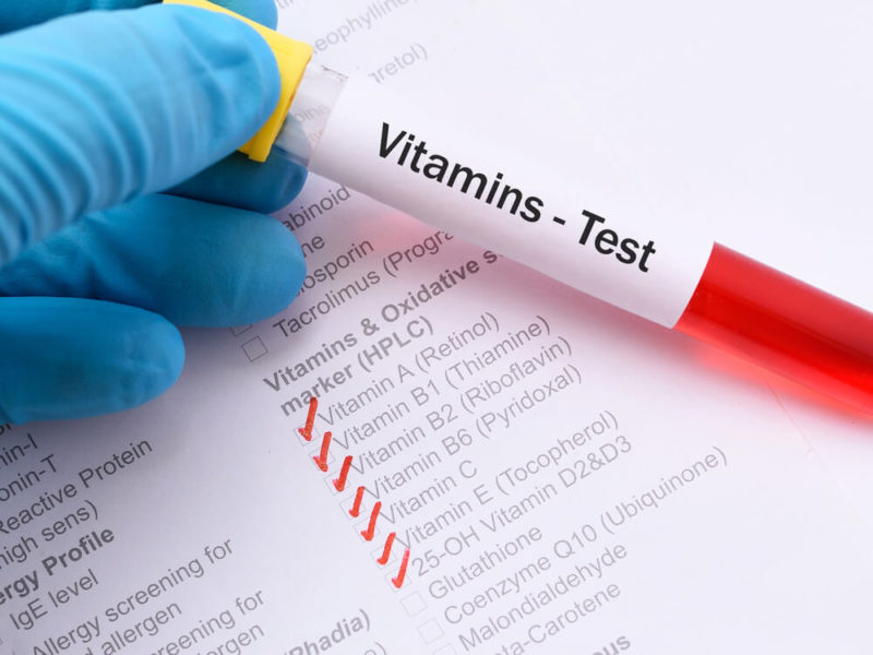 Nutrition Tests for Micronutrient Testing