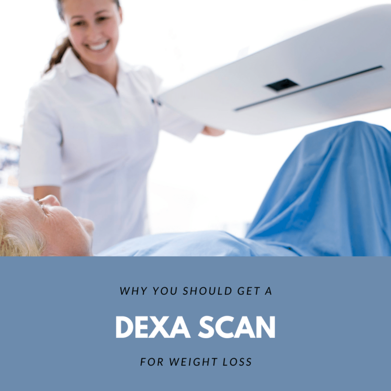 Why You Should Get a DEXA Scan for Weight Loss
